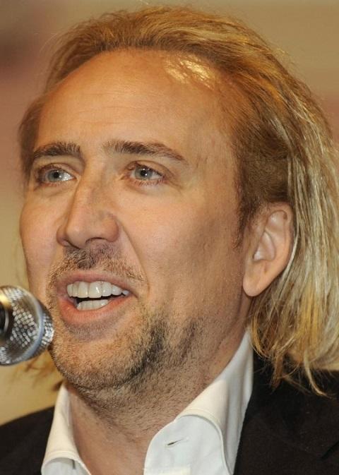 nicolas-cage-hair-transplant